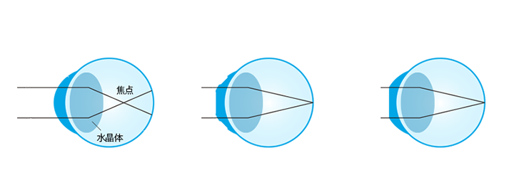 iOK®の仕組み